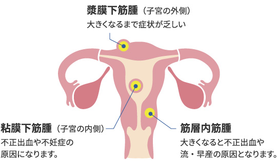 3 子宮 センチ 筋腫