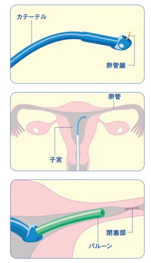 004_卵管性不妊01